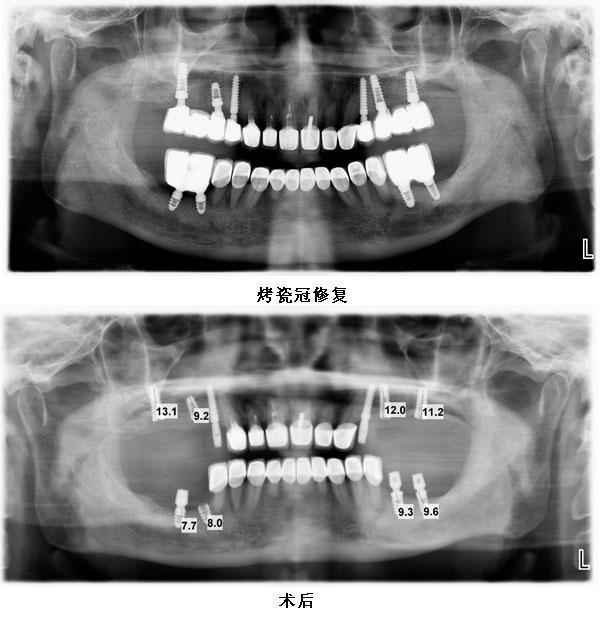 患者双侧多颗牙种植修复